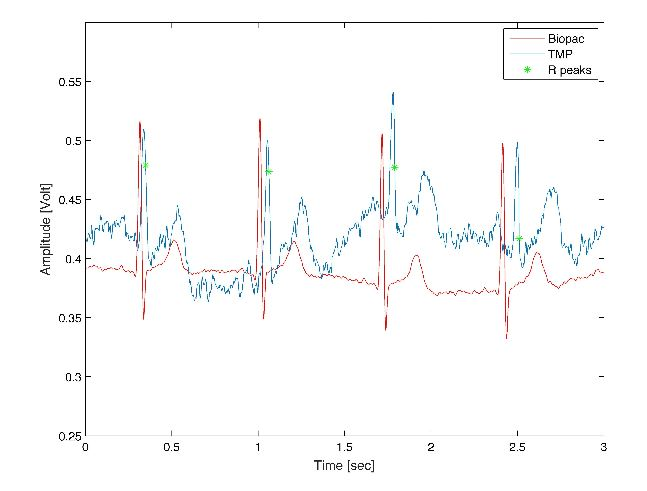 Figure 8. Synchronised ECG signals acquired from thorax region with Biopac instrument (red line) and from finger site with TMP system (blue line)